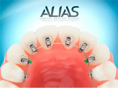 ALIASのイメージ