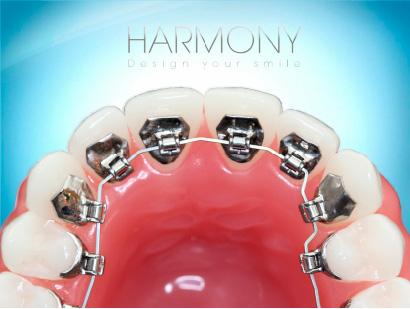 HARMONYのイメージ